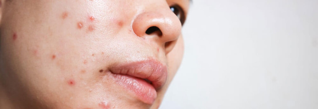 What's the Difference Between Acne and Sebaceous Cysts?