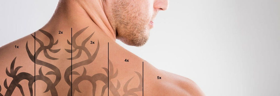 How to Choose Your Laser Tattoo Removal Provider