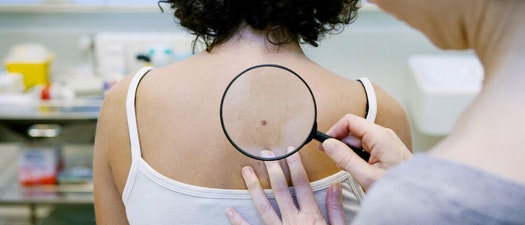 Skin Cancer Screenings Can Save Your Life