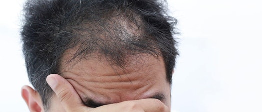 Vanguard Dermatology hair loss products Spot a Scam: Empty Hair Loss Product Promises
