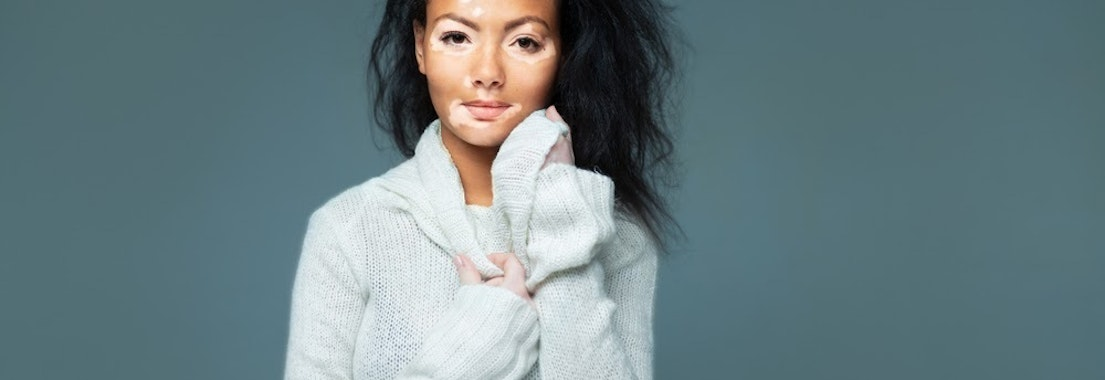 Woman with vitiligo See How Our Experience with Vitiligo Can Help You