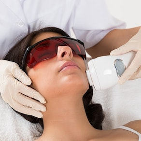 Woman having laser hair removal treamtent on her face Why Lasers Are an Excellent Choice for a Busy Schedule