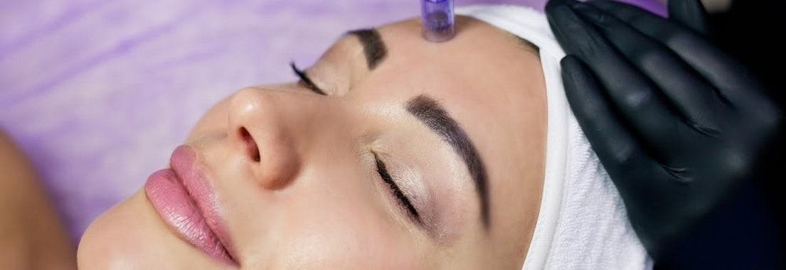 Woman having microneedling skin treatment Aging Skin But Not Ready for Injectables? Try Microneedling