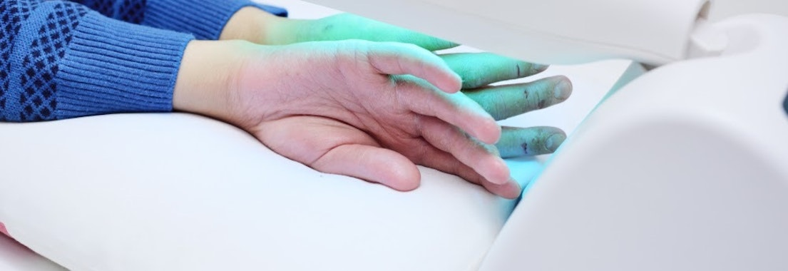 Photodynamic therapy put on someone's hand How Photodynamic Therapy Can Save Your Skin This Winter