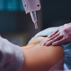 Laser tattoo removal on a lower back Important Event to Attend? How PicoWay Can Safely Remove Your Unwanted Tattoo