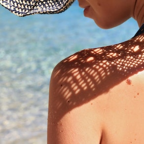 Dark spots on a woman's back Get a Handle on Your Sunspots for Skin Cancer Awareness Month