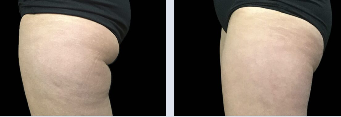 Close up of a woman's thighs before and after CoolSculpting
