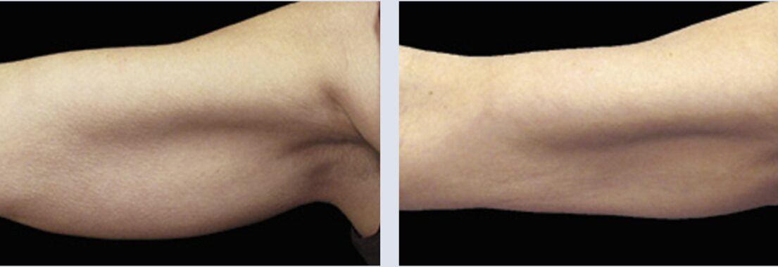 Close up of a woman's arm before and after CoolSculpting