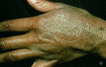 Atopic dermatitis on a hand