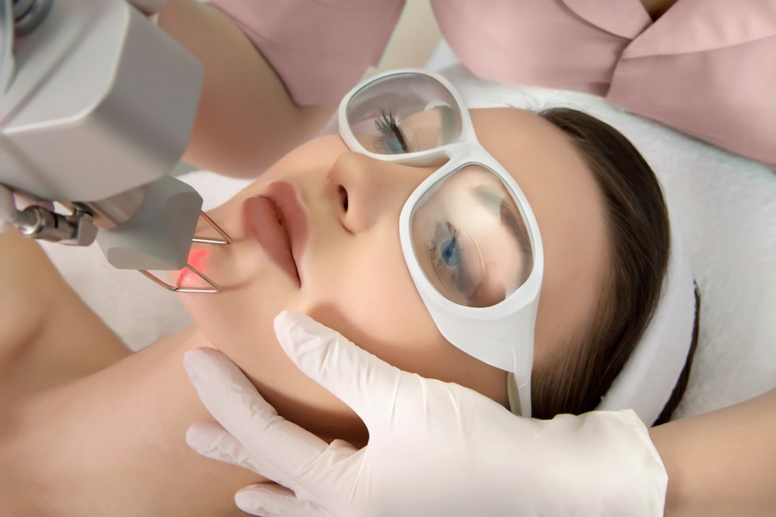 Choosing The Best Laser Treatment