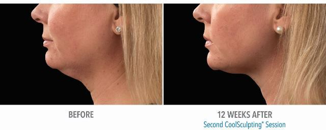 Close up of woman's face before and after coolsculpting