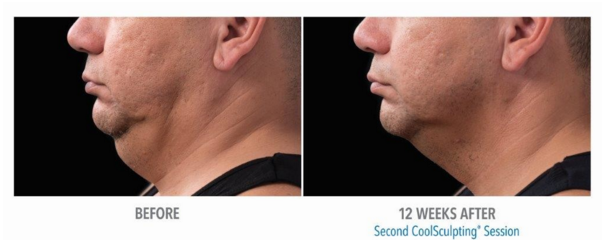 Man's chin before and after