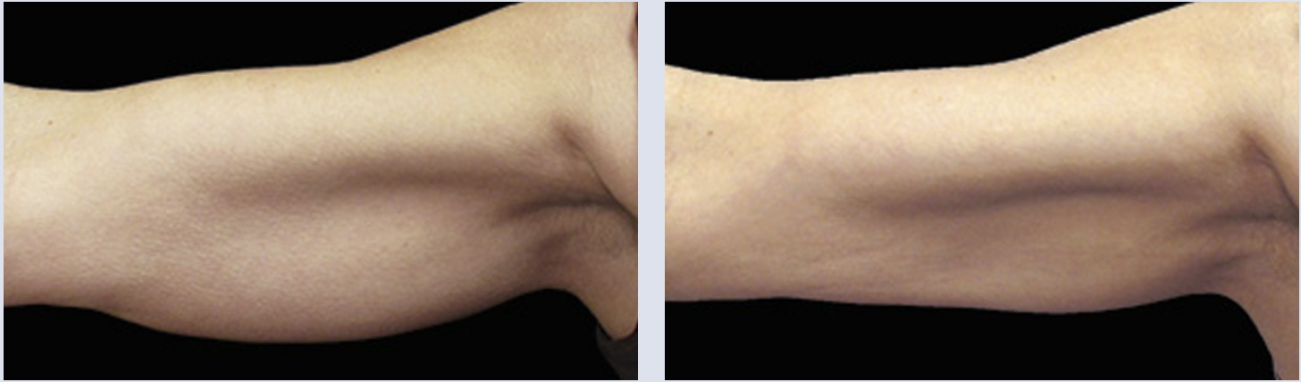 Close-up of arm, before and after CoolSulpting