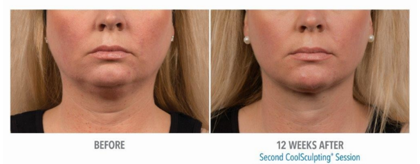Woman's chin before and after 12 weeks of coolsculpting