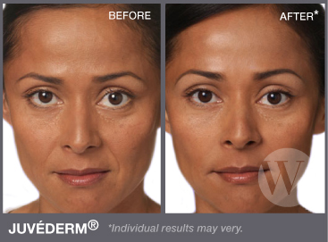 Close up of a woman's face before and after applying Juvederm®