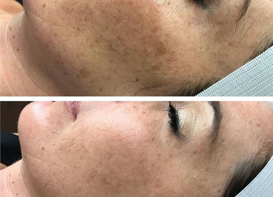 Laser Treatment of Pigmented Spots