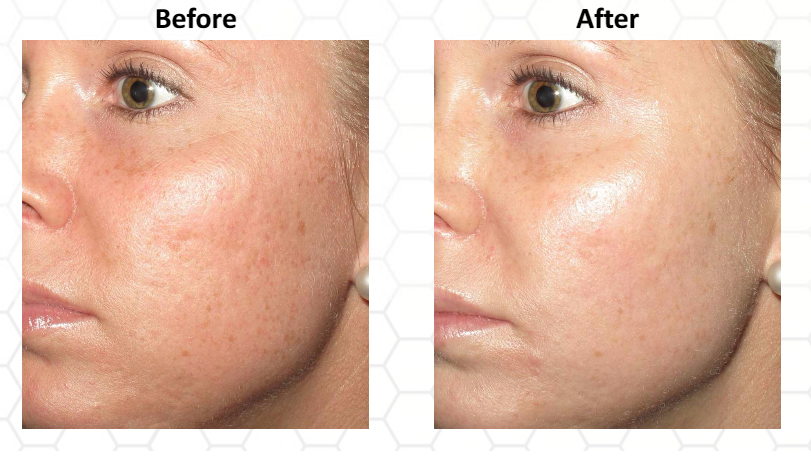 Close up of a woman's face before and after treatment