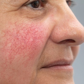 Woman with rosacea on her cheek Acne vs. Rosacea: How to Combat Both