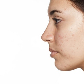 Avoid and Prevent Acne Scarring with These Skin Care Treatments