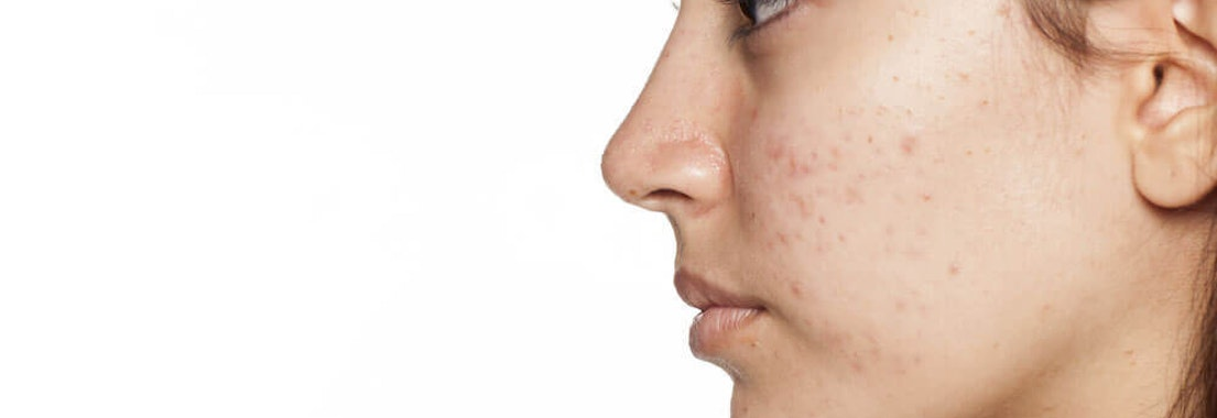 Side view of woman's face with acne Avoid and Prevent Acne Scarring with These Skin Care Treatments