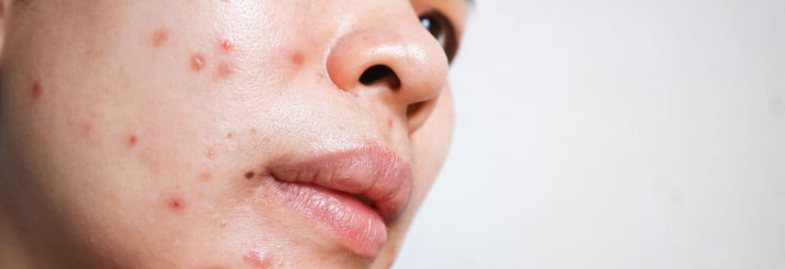 Woman feeling acne on her face How Treating Acne Can Improve Your Mental Health