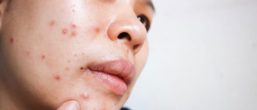 Woman feeling face acne How to Identify and Treat Acne and Sebaceous Cysts
