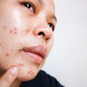 Woman smiling with anti-aging makeup on Are You Dealing With Sebaceous Cyst Acne? How We Can Help