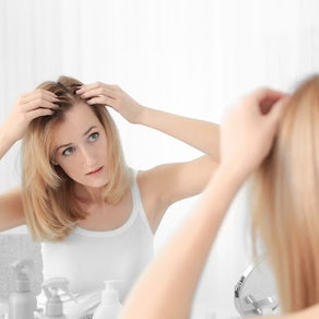 It's Not the Holiday Stress. You May Have Alopecia. How We Can Help