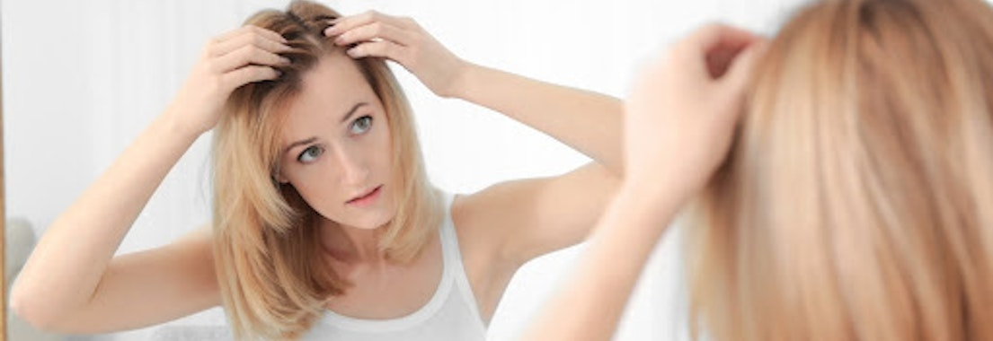 Woman looking at her hair for alopecia It's Not the Holiday Stress. You May Have Alopecia. How We Can Help
