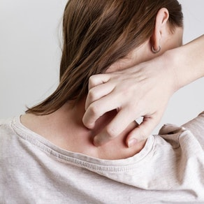 Best Treatments for Psoriasis