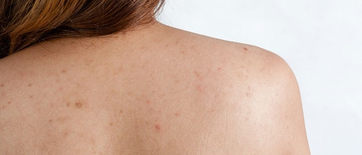 Clear Up Body Acne With These 4 Tips