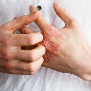 Signs and Symptoms of Contact Dermatitis
