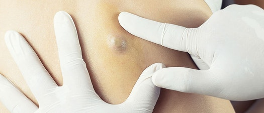North Pacific Dermatology cyst removal service Cyst Removal: Is it Always Necessary?