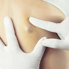 Cyst Removal: Is it Always Necessary?