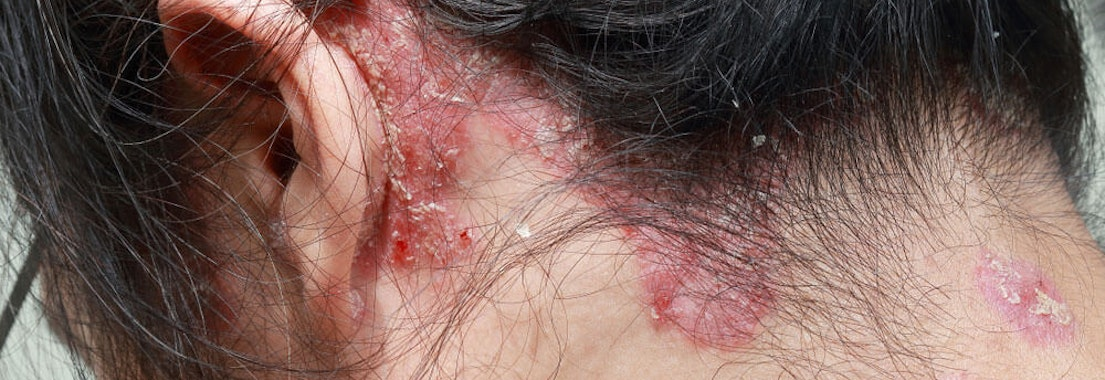 How to Detect Psoriasis on the Scalp