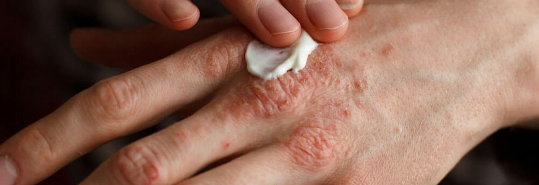Diagnosed with Eczema? Try These Cold Weather Skin Care Tips