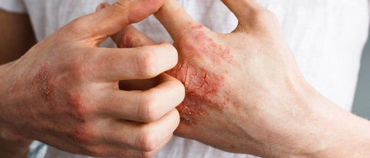 Dermatitis and Eczema: Know the Signs and Symptoms of This Common Skin Condition