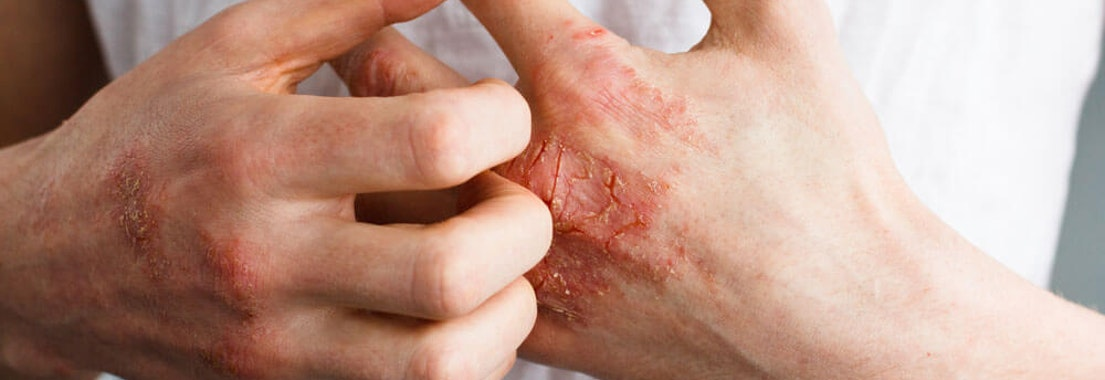 Hands with burns Dermatitis and Eczema: Know the Signs and Symptoms of This Common Skin Condition