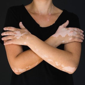 See How Our Experience with Vitiligo Can Help You