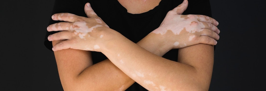 Woman with vitiligo on her arms See How Our Experience with Vitiligo Can Help You