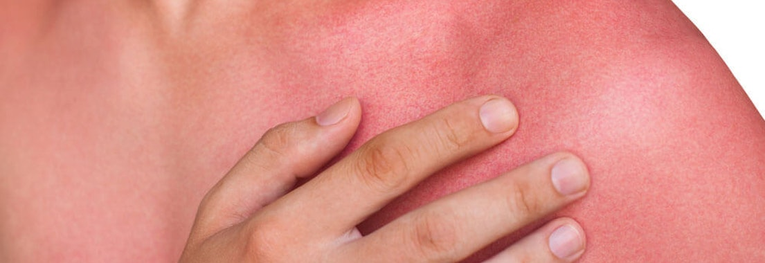 How to Get Relief After a Sunburn