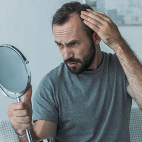 If You're Losing Hair, You May Have Pattern Alopecia