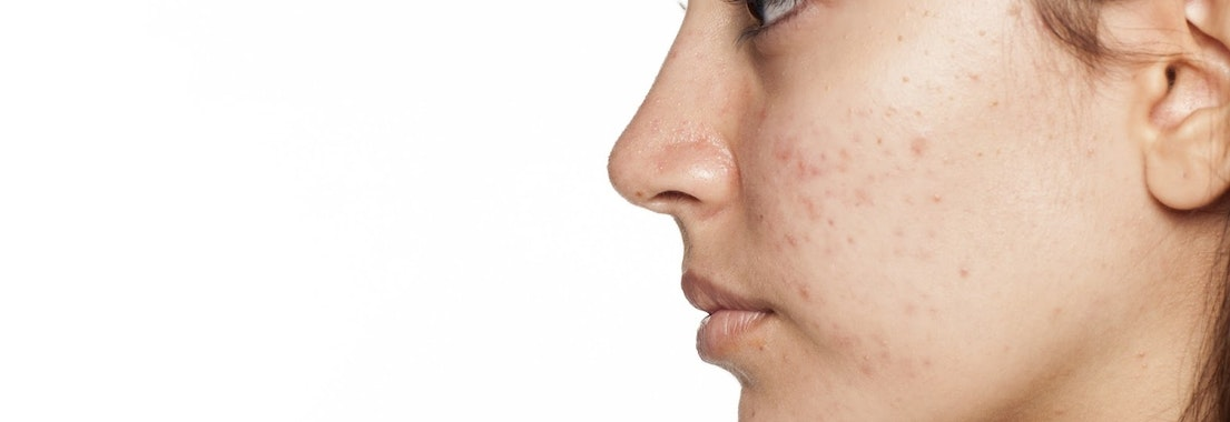 Woman with acne on her face Be Confident at Your Holiday Party with These Acne Treatments