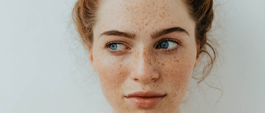 North Pacific Dermatology freckle reduction treatment How to Reduce Freckles