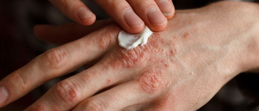 How to Treat Dry and Chapped Skin