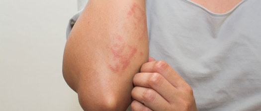 Person with poison ivy on their arm 5 Ways to Lessen Itch From Poison Oak and Poison Ivy
