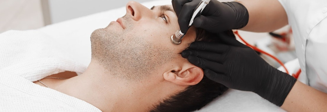 Man being treated for Microdermabrasion Why Microdermabrasion Is So Popular and How It Can Help You