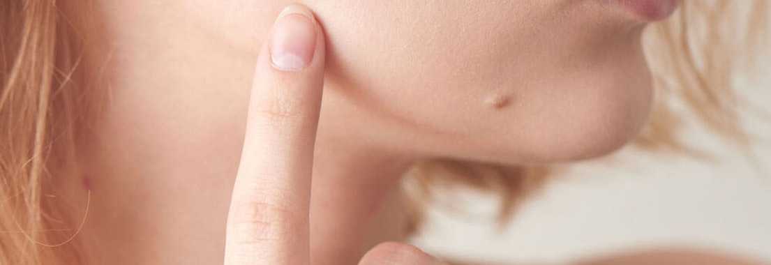 Getting Moles Removed: 6 Symptoms Dermatologists Look For