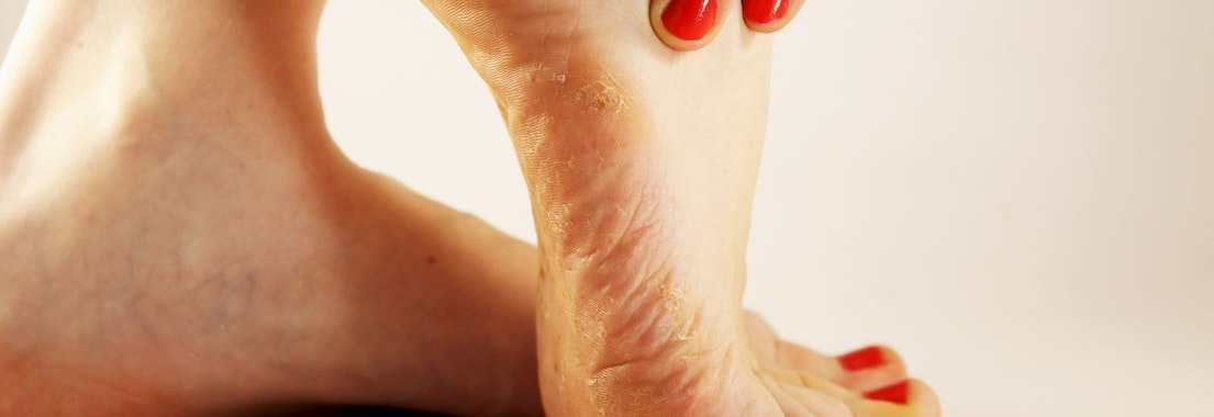 Here Are the Most Common Types of Fungal Infections