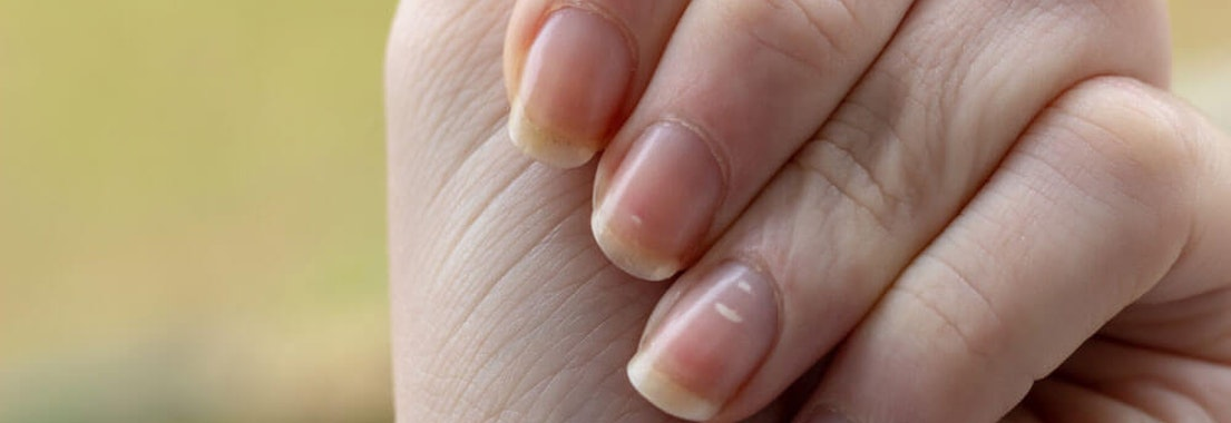 North Pacific Dermatology abnormal fingernails Could Your Nail Shape be a Sign of Nail Abnormalities?